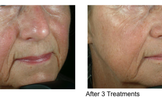 Sublative Skin resurfacing before & after 1