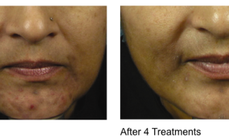 Sublative Skin resurfacing before & after 10