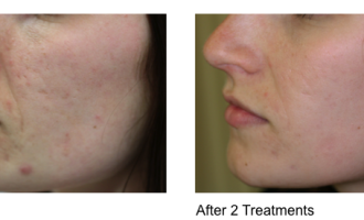 Sublative Skin resurfacing before & after 12