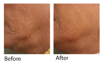 Sublative Skin resurfacing before & after 13