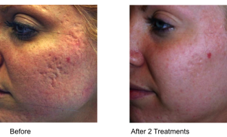 Sublative Skin resurfacing before & after 2