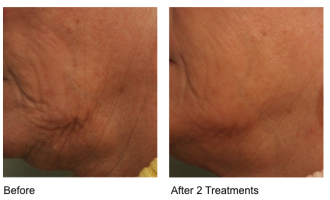 Sublative Skin resurfacing before & after 3