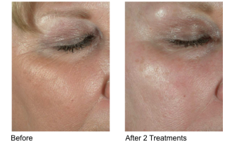 Sublative Skin resurfacing before & after