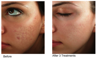 Sublative Skin resurfacing before & after 4