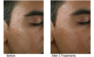 Sublative Skin resurfacing before & after 6