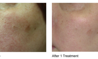 Sublative Skin resurfacing before & after 7