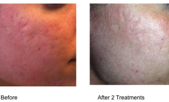 Sublative Skin resurfacing before & after 8