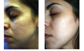 Sublative Skin resurfacing before & after 9
