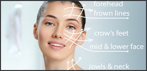 wrinkle reduction treatment Melbourne